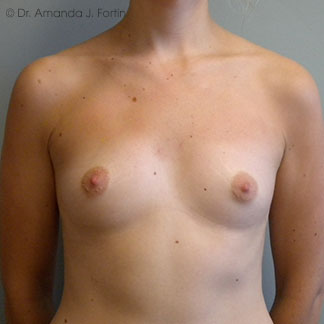 Augmentation before