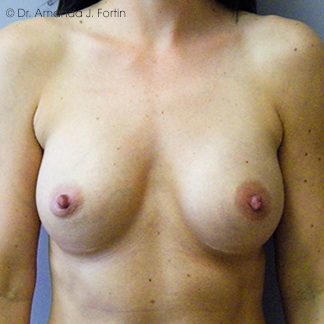 Augmentation after
