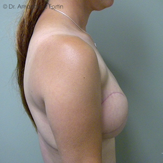 Latissimus Dorsi after