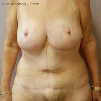 Bariatric after